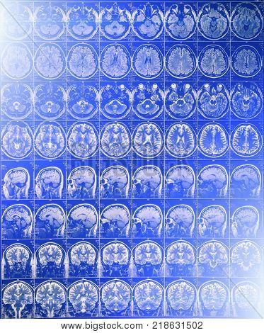 MRI or magnetic resonance image of head and brain scan with blue light effect, toned image