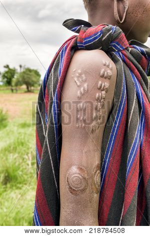 Traditional scarification typical for the Mursi tribe in Ethiopia