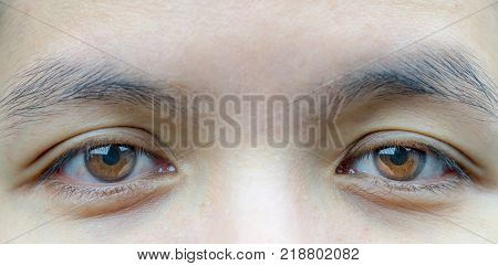 Macro shot of Asian middle aged woman brown eyes with wrinkles under the eyes and showing veins in eyes. Eyelid problem need surgery for lift up