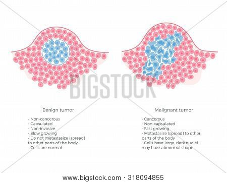 Vector Isolated Illustration Of Malignant And Benign Tumor In Healthy Tissue. Spreading Of Cancer Ce