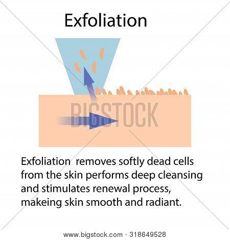 Exfoliation Or Peeling, Vector Illustration Isolated On The White Background