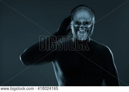 X-ray Of A Man's Head. Medical Examination Of Head Injuries. Others X-ray Images In My Portfolio.