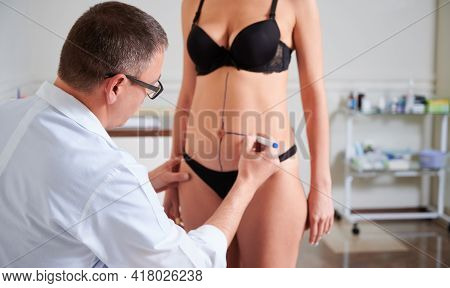 Focus Of Male Doctor In White Lab Coat Drawing Marks On Female Body Before Plastic Surgery. Woman St