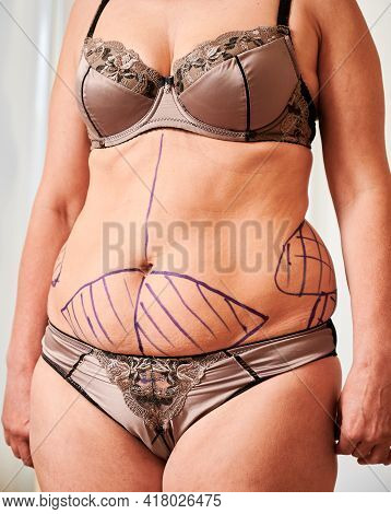 Female Patient Belly With Blue Marks For Aesthetic Surgery. Fat Woman In Underwear Demonstrating Res