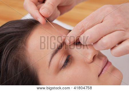 Acupuncture Needles On Head