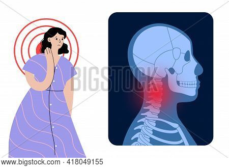 Pain In Neck Or Spine Bones. Skeleton X Ray. Woman Silhouette Medical Poster. Joints And Cartilage I
