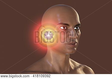 Otitis Media In An African Man, A Group Of Inflammatory Diseases Of The Middle Ear, 3d Illustration