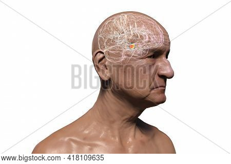 An Old Man With Highlighted Brain And Black Substance Of The Midbrain, 3d Illustration. Black Substa