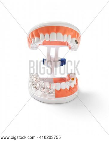 Teeth model isolated on white, with showing different types of tooth repair