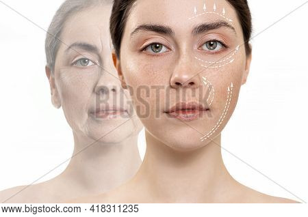 The Result Before And After Plastic Surgery. Wo Close Up Portraits Of A Caucasian Woman. White Backg