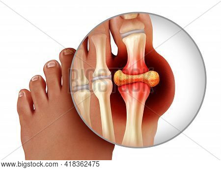 Foot Gout And Painful Feet Arthritis Disease As Toes Close Up With A Human Toe As A Hyperuricemia Sy