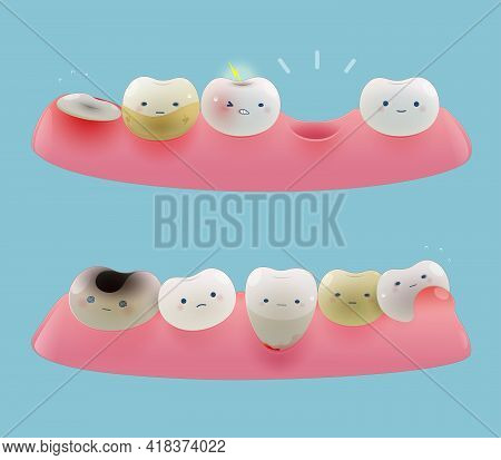 Collection Of Gum And Cute Little Teeth In A Blue Background. Cartoon Of Total Health Dental Problem
