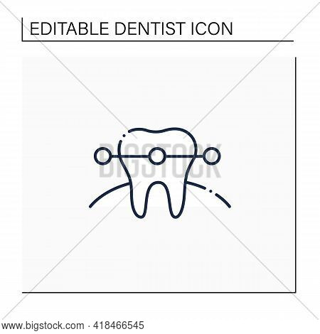 Tooth Braces Line Icon. Tooth Care Fixed And Correct Bite And Realign Teeth Over Time. Teeth Care Hy