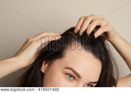 Woman Suffering From Baldness On Grey Background, Closeup
