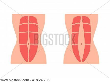 Normal Tone Muscle Abdomen And Diastasis Recti, Weak And Divergence Abdomen Muscle. Rectus Abdominal