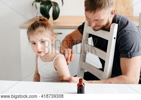 A Man Uses Medicine For A Skin Rash On A 4-year-old Girl With Chickenpox. Father Treating His Daught