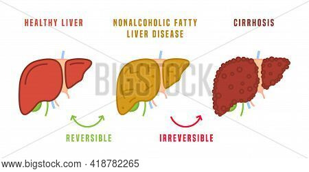 Stages Of Liver Diseases. Medical Infographic. Vector Illustration