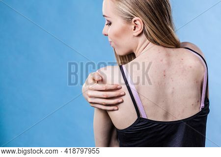 Health Problem, Skin Diseases. Young Woman Showing Her Back With Acne, Red Spots. Teen Girl Scratchi