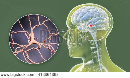 Black Substance Of The Midbrain And Its Dopaminergic Neurons, 3d Illustration. Black Substance Regul