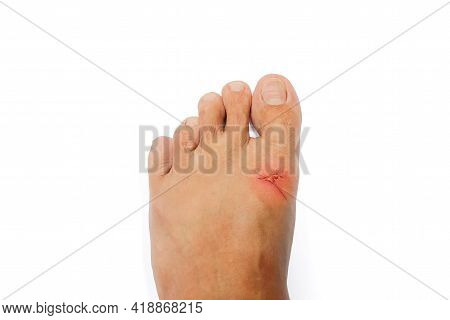 The Foot With Wound On White Background