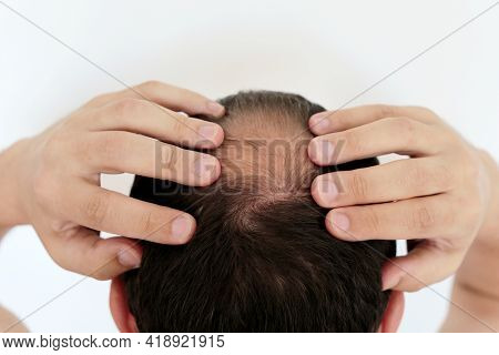 Beginning To Go Bald Man Concerned About Hair Loss. Male Head With A Bald On White Background