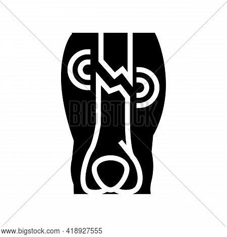 Closed Limb Fracture Disease Glyph Icon Vector. Closed Limb Fracture Disease Sign. Isolated Contour