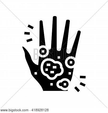 Hand Eczema Glyph Icon Vector. Hand Eczema Sign. Isolated Contour Symbol Black Illustration