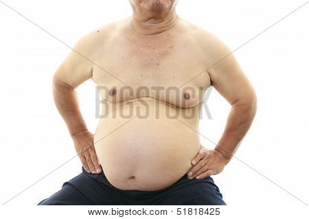Portrait of an obese patient isolated on white background poster