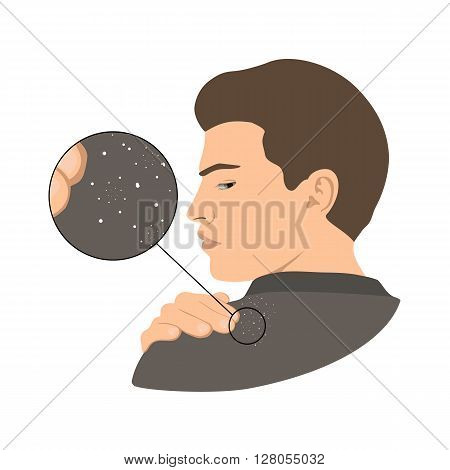 Dandruff issue on man's shoulder. Close up view. Vector illustration.