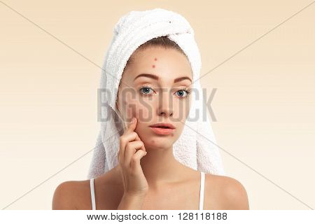 Close Up Isolated Portrait Of Beautiful Young Caucasian Woman With Blue Eyes And Problem Skin, Looki