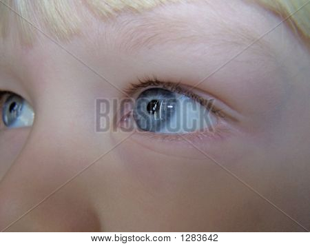 Wide Open Eyes