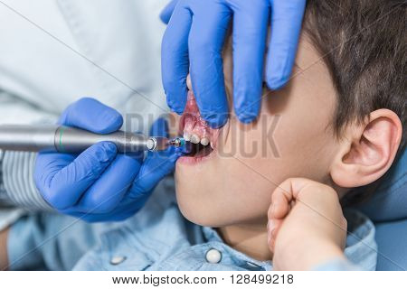 Removing Dental Calculus To Little Boy