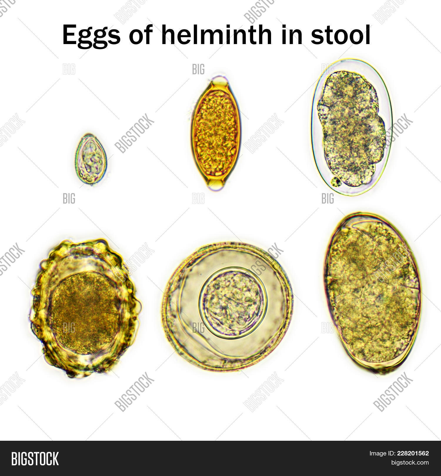 Mixed Helminths Stool Image & Photo (Free Trial)
