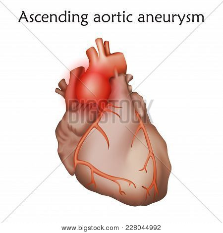 Ascending Aortic Aneurysm. Damaged Heart Muscle. Anatomy Illustration. Colorful Image, White Backgro