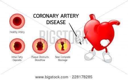 Heart Character With Coronary Artery Disease Infographic. Heart Awareness Concept. Atherosclerosis S