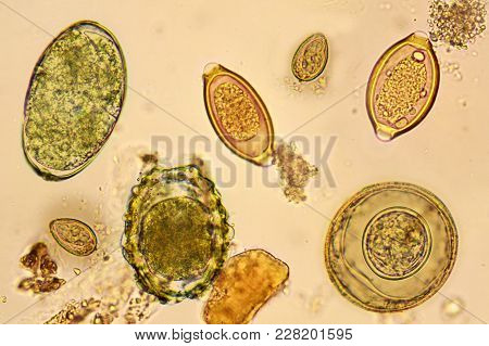 Mixed Of Helminths In Stool, Analyze By Microscope