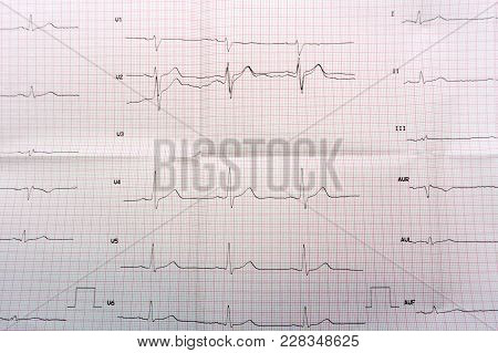 Emergency Cardiology And Intensive Care. Ecg With Acute Period Of Large-focal Widespread Anterior My