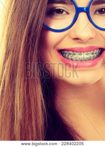 Dentist And Orthodontist Concept. Nerdy Geek Woman Wearing Big Eyeglasses Smiling Showing Her White
