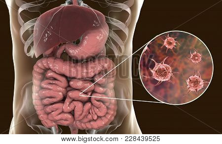 Parasitic Infection Of Intestine, 3d Illustration Showing Close-up View Of An Abstract Parasite And