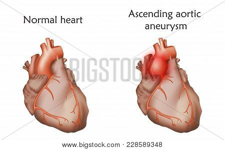Ascending Aortic Aneurysm. Damaged And Normal Heart Muscles. Anatomy Illustration. Colorful Image, W