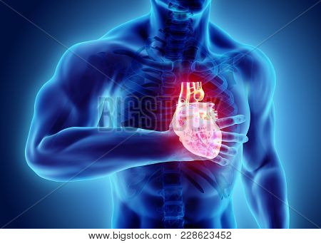 3d Illustration Of Human Heart Attack, X-ray Medical Concept.