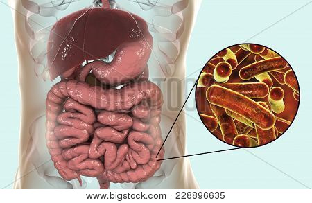 Rod-shaped Bacteria Shigella Which Cause Food-borne Infection Shigellosis Or Dysentery, The Infectio