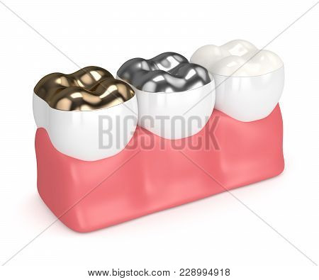 3d Render Of Teeth With Gold, Amalgam And Composite Onlay Dental Filling In Gums Over White Backgrou