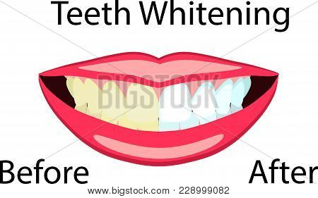 Vector Face Of Girl And Smile With Bad And Ideal White Teeth, Before After Effect, For Dental And St