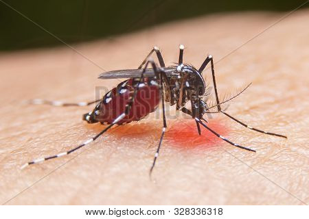 Striped Mosquitoes Are Eating Blood On Human Skin. Mosquitoes Are Carriers Of Dengue Fever And Malar