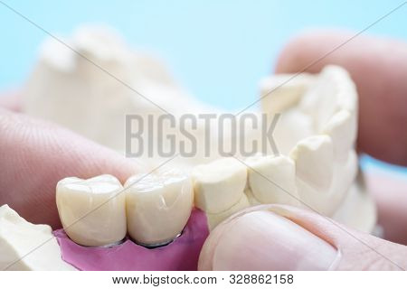 Closeup / Implant Prosthodontics Or Prosthetic / Tooth Crown And Bridge Implant Dentistry Equipment