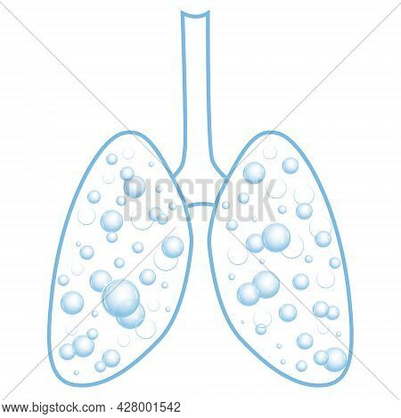 Pulmonary Edema. Fluid In The Respiratory Organs. Bubbles In The Lungs. Vector Illustration Isolated