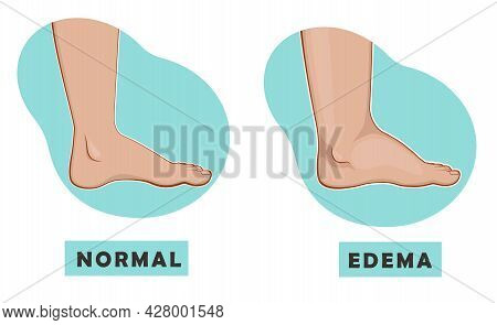A Swollen Foot And Ankle And A Normal Foot. Vector Illustration Of The Disease