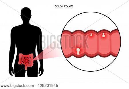 Colon Polyps Concept. Hyperplastic, Inflammatory And Hamartomatous Polyp. Development Of Tumor In La