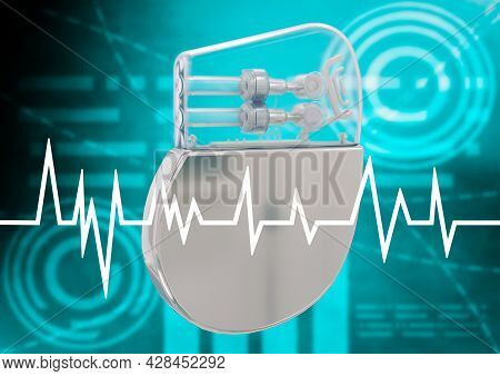 Artificial Cardiac Pacemaker Isolated On Graphic Background. 3d Rendering